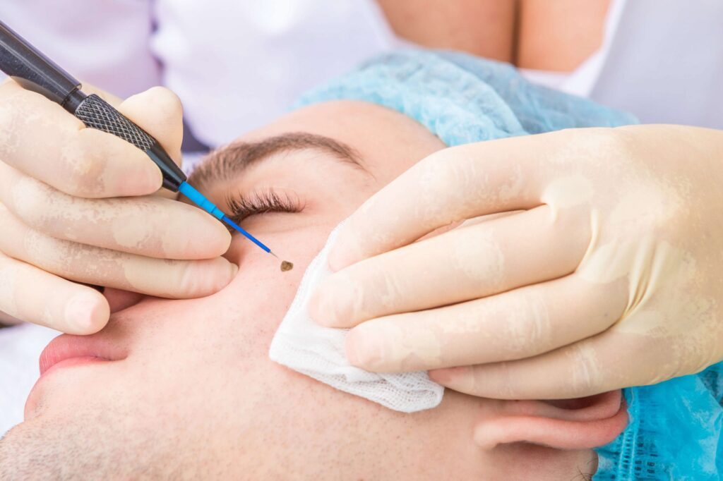 How Does Mole Check Clinic Help You In Mole Removal?